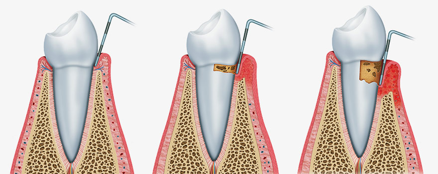 Diagram of oral surgery